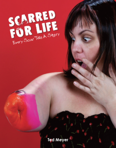 Scarred for Life by Ted Meyer